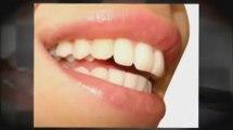 Professional Whitening Kits I Teeth Whitener