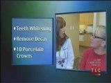 Teeth Whitening Chatsworth-Marilyn Calvo DDS Teeth Whitening