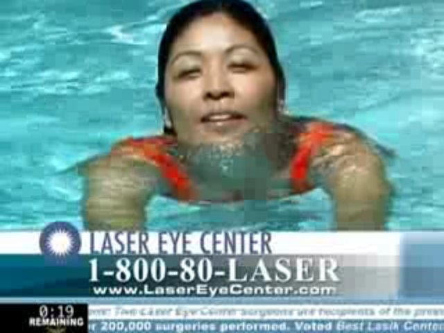 Laser Eye Center Los Angeles Custom Laser Vision Correction