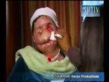 La victime d'un chimpanzé dévoile son visage chez Oprah Wi