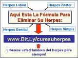 Como tratar el herpes - Herpes genital labial zoster simple