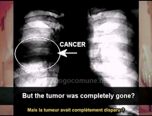 2-Dr Simoncini, Cancer, l'hypothèse fongique (VO stfr)