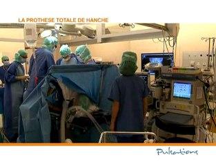 La prothèse totale de hanche