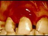 Gum Bleeding Stop Bleeding Gums Cure Bleed Gum End Bleed