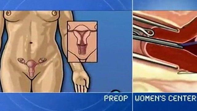 PreOp® Surgery Patient Education Centers