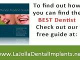 La Jolla San Diego, Dental Implants, Dentist, tooth replace