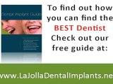 """Dental Implants, Dentists, LaJolla Dentist San Diego"""