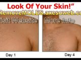 LEARN End Skin Moles in 3 Days | Remove Moles NOW!