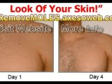 IMPORTANT How Vanish your moles? Discover How Vanish Moles !
