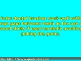 Dentists Introduce the Importance of Healthy Gums With Use o