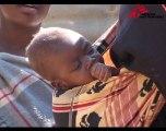 Malawi - Vivre avec le SIDA