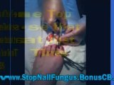 nail fungus home remedies - how to cure fungus nails