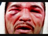 Watch Antonio Margarito vs Manny Pacquiao FIGHT VIDEO!!!