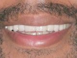 Cosmetic Dentistry: Porcelain Veneers : Why would I want dental veneers?