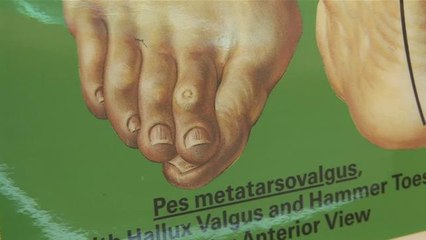 How To Treat Overlapping Toes