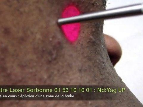 Vidéo Epilation laser définitive phototype foncé