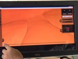 Tech Firm Supports Virtual Cancer Screening with 3D Viewer