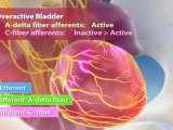 Overactive Bladder Disorder (OAB) animation