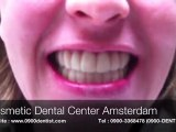 """Dental Cosmetic Center Amsterdam Presents """"Snap on Smile"""" HD"""