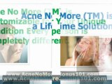 acne treatments that work - how to get rid of acne overnight -how to get rid of acne scars fast