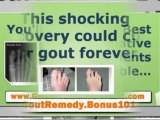gout home remedies - treatment for gout - treatment of gout