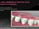 Oral Cancer Screenings | Salt Lake City Dentist Office