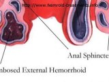 Hemorrhoids Hurt But You Can Get Rid Of Them Forever