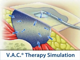 Wound Management | V.A.C. Therapy System | KCI