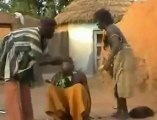 Mozambikliler Nasıl Tedavi Olur?