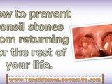 tonsil stones treatment - tonsil stones how to remove - how to remove tonsil stones