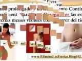 tratamientos para estrias - desaparecer las estrias - estrias en hombres