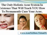 get rid of acne scars - acne scars treatment - acne home remedies