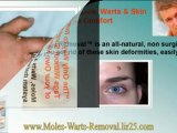 warts removal - warts treatment - genital wart remover