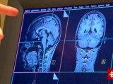 Découverte - Commotions cérébrales et dépression