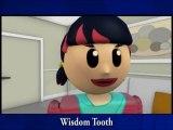 Montclair CA Dentist, Wisdom Tooth Extraction Claremont, Oral Surgeon Montclair CA