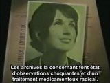 MK Ultra: CIA et Dr Ewen Cameron entre 1957 et 1964 au Canada