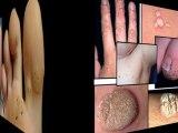 remedio para verrugas - eliminación de verrugas - como eliminar las verrugas de la cara