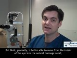 Canaloplasty (Glaucoma Treatment) | What If The Canal Is Not Fully Catheterized?