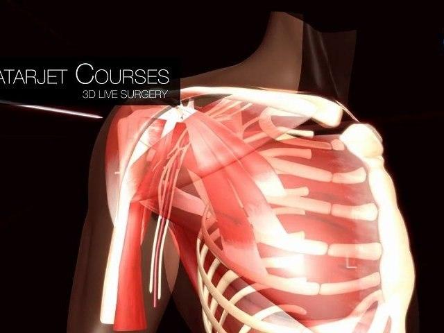 ALPS SURGERY INSTITUTE - Latarjet Courses - 3D Live Surgery - by Novamotion