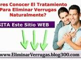 Virus Del Papiloma Humano - Verrugas Genitales En La Mujer