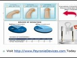 Natural Treatment in Peyronie's Disease with External Penile Stretching