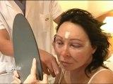 Lifting cervico-facial et lipofilling visage : résultats et cicatrices après une chirurgie esthétique du visage (Dr Montoneri)