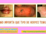 herpes zoster contagio - herpes bucal - que es herpes