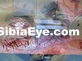 Eye Exams Lake Worth, Cataract Surgery Lake Worth, Optometrists Lake Worth, Eye Doctor Lake Worth