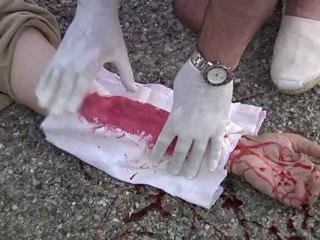 Conducción segura de motocicletas: Heridas y hemorragias 1ª parte