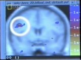 Cerebro: Memoria y envejecimiento (RMf)