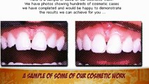 Dentists Implants Costa Mesa Veneers Dentures Cosmetic Dentistry Invisalign Dental Services