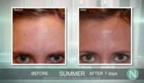 Nerium Night Cream Results | Nerium Effective Results