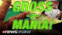 GROSS: Wrestler Hulk Hogan Tweets Pics of Badly Burned Hand