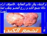Hépatite virale C- Informations générales.-Dr AMINE A.-Casablanca-Maroc